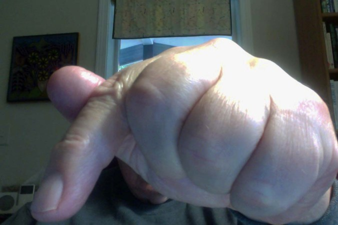 """A selfie of my finger poised for action. """"Too weird,"""" Peggy says."""